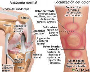 Anterior (frontal) Problemas de cadera - Causas y Tratamiento