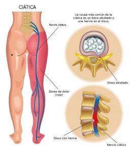 Dolor de espalda baja - Nervios
