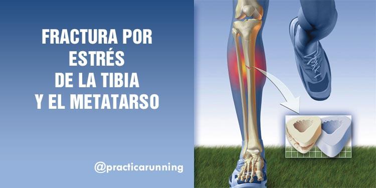Photo of Los corredores corren el riesgo de sufrir una fractura por estrés metatarsal
