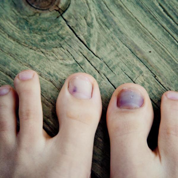 Photo of ¿Por qué te hiciste una uña del pie negra por correr o caminar?