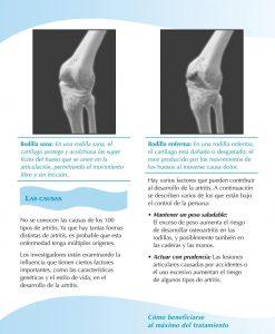 Siga moviéndose cuando tenga artritis y otros tipos de dolor de rodilla