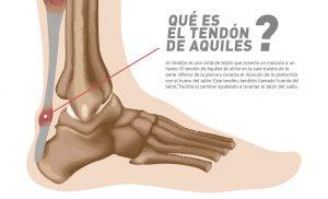 Tendón de Aquiles Parte 1 - Las lesiones de Aquiles Por qué se producen y son tan difíciles de tratar