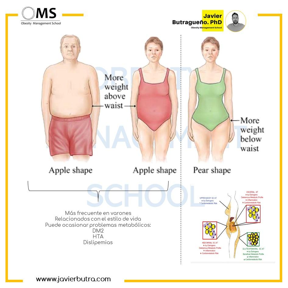 Photo of Cuánta grasa visceral puede aumentar la probabilidad de problemas de salud