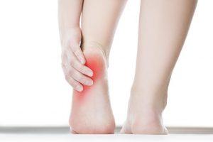 El ardor en los pies es un signo de advertencia de la neuropatía diabética periférica
