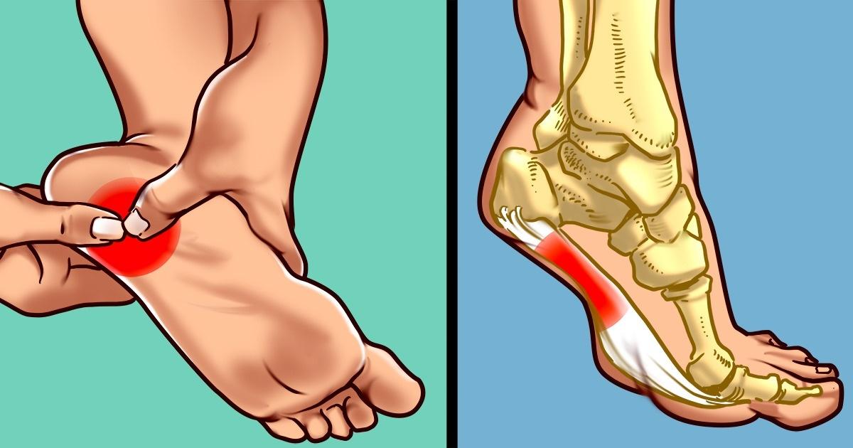 Photo of El dolor de talón es aún peor si tienes sobrepeso